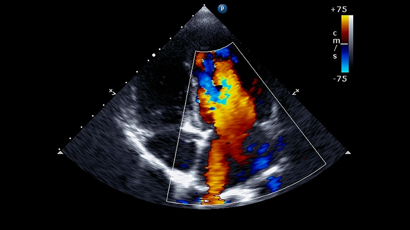 Streamlined Aortic Stenosis Care During COVID-19 thumbnail