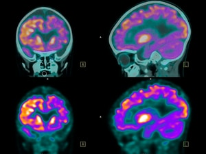 First Phase 3 Results for SRS vs WBRT for Brain Metastases