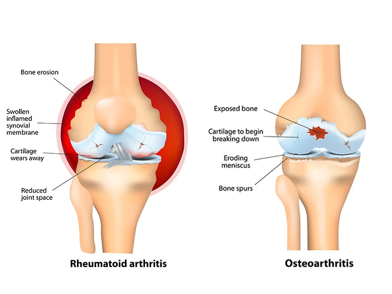 Keys To Living Well With Osteoarthritis