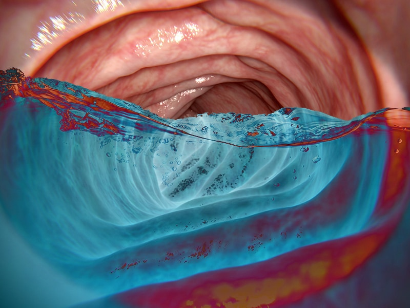 'Underwater' Colonoscopy Amplifies Polyp Detection