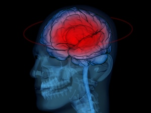 Wide Variation in ED Management of Traumatic Brain Injury