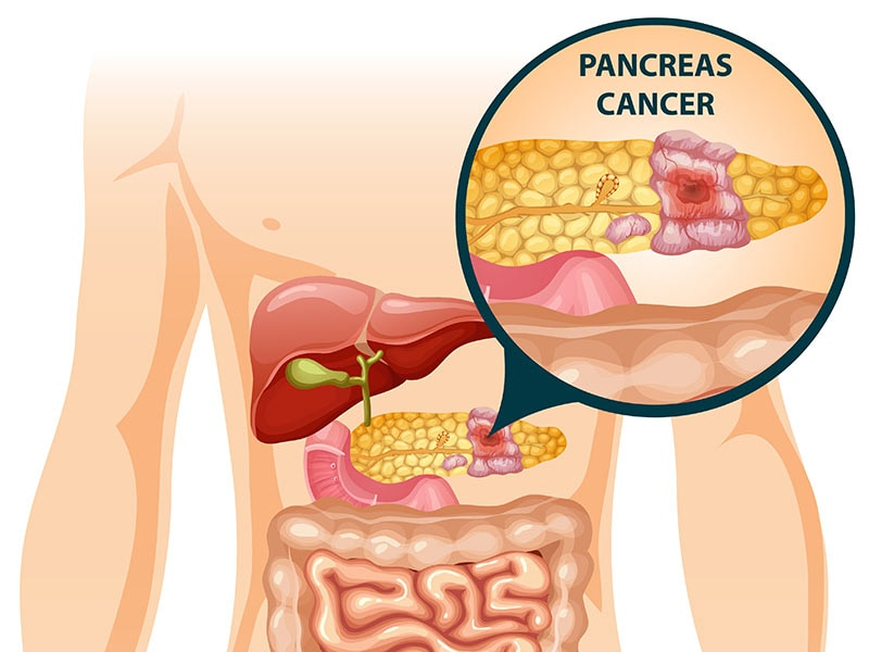 Pancreatic Microbiome Influences Cancer And Its Treatment