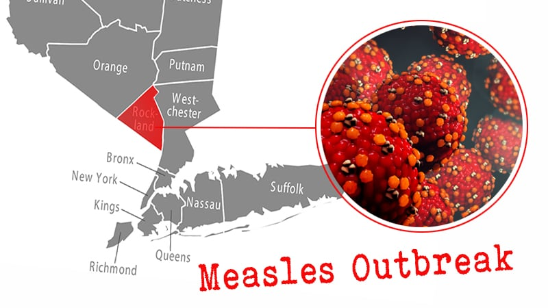 New York's Rockland County Issues New Actions to Fight Measles on leptospirosis map state, allergy map state, lyme disease map state, mrsa map state, obesity map state, autism map state,