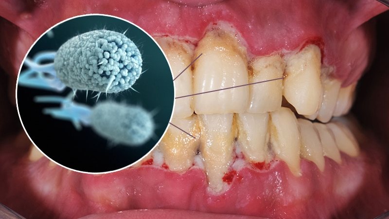 Image result for free images of gum disease