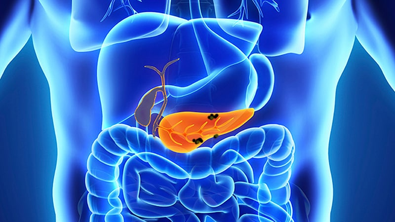Pancreatic Cancer Screening in High-Risk Individuals