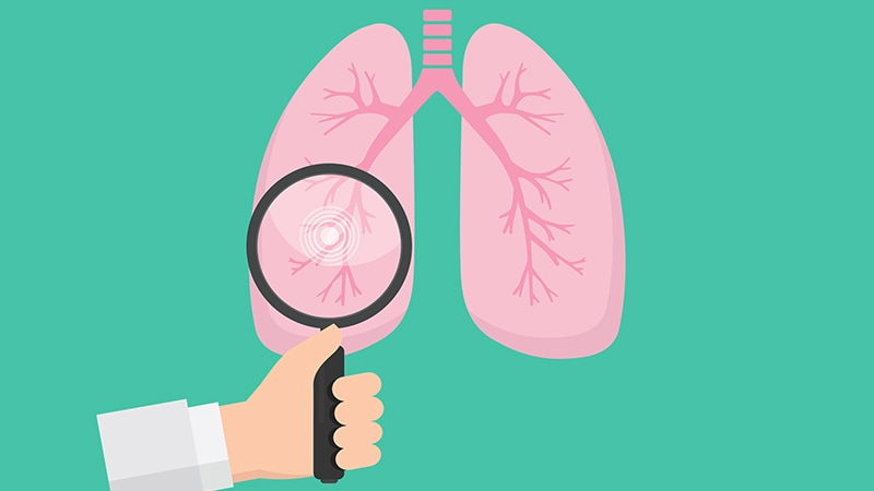 Unprecedented Survival in Lung Cancer With Immunotherapy
