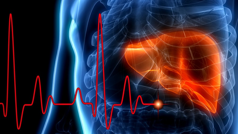 Do Anti-ApoA-1 Antibodies Link Fatty Liver Disease and CVD?