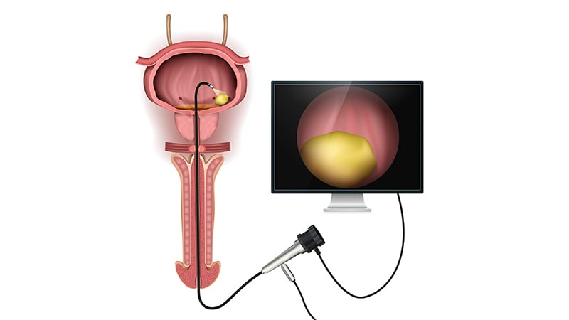 Photo of 'Every Patient Would Applaud' Bladder Cancer Surveillance Study