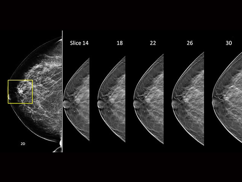 tomosynthesis cme Breast tomosynthesis dec 3, 2018: $$650 - $895 iicme: 185: events or register ii cme international institute for continuing medical education 6438 us hwy.