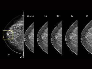 Breast Tomosynthesis Outperforms Standard Mammography