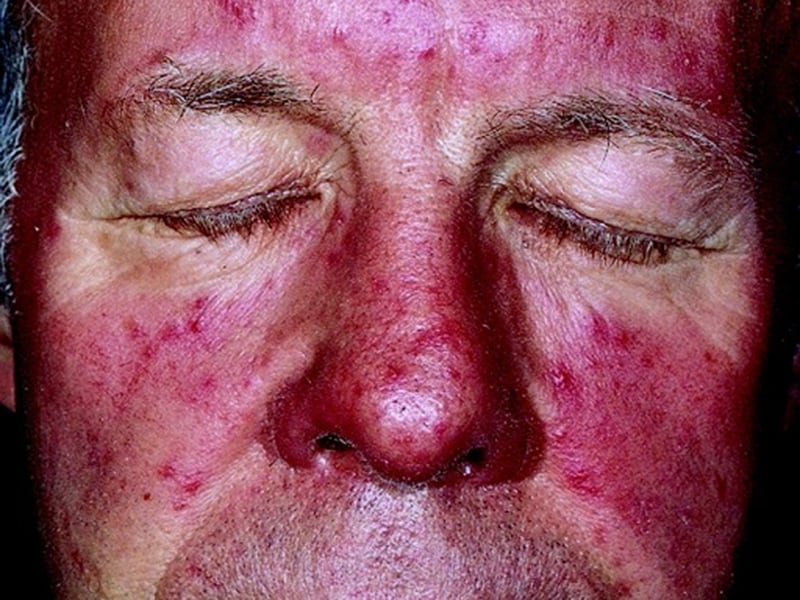 Fda Oks New Cream For Facial Erythema In Rosacea In Adults