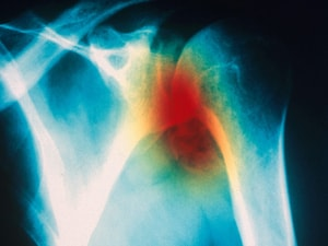 Chondroitin Rivals Celecoxib for Osteoarthritis Symptoms