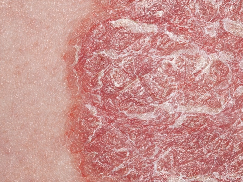 Biologics Maintain Benefits Long Term In Plaque Psoriasis