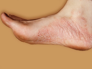 Ixekizumab Improves Palmoplantar Psoriasis Within 2 Weeks