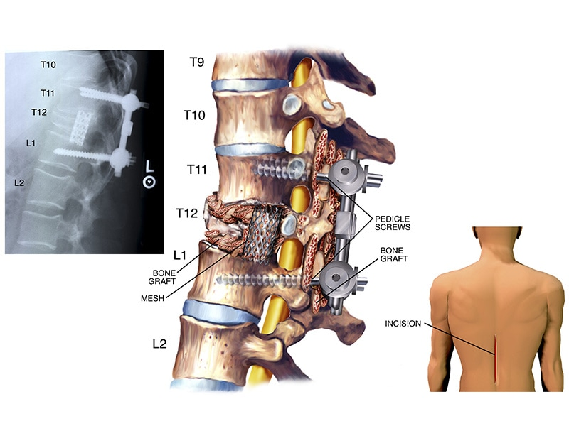 Multidisciplinary Review Reduces Unnecessary Lumbar Surgeries