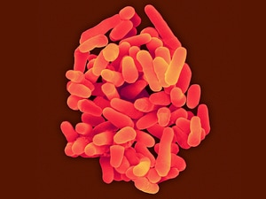 Drug-Resistant Tuberculosis on the Rise in Eastern Europe