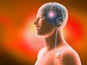Deep Brain Stimulation May Offer Hope for Severe Schizophrenia