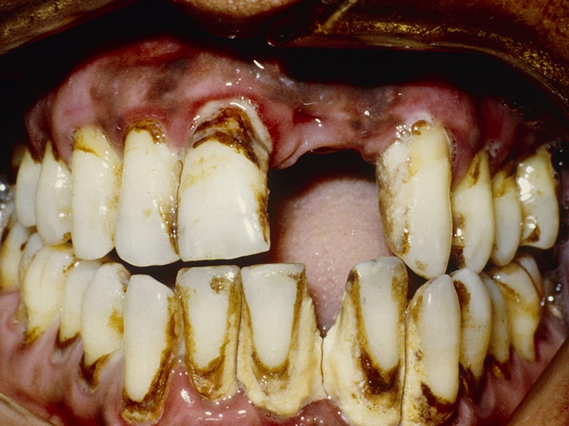 Severe Gum Disease Increases Both Cancer Risk And Mortality