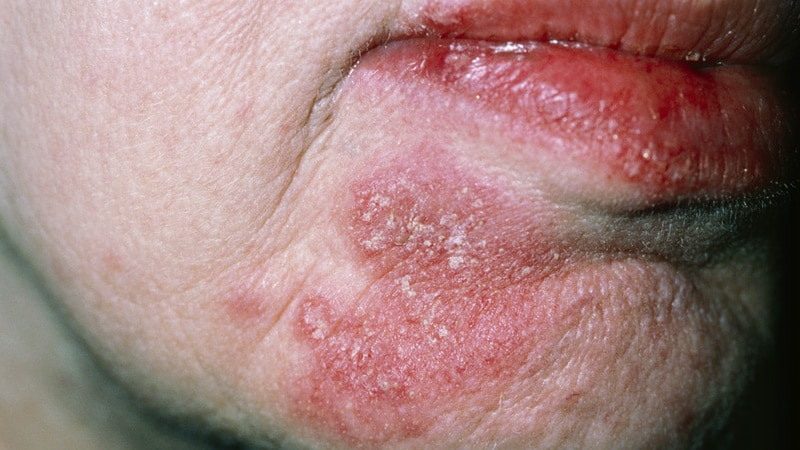 Experts Seek Simpler Endpoints for Lupus Trials