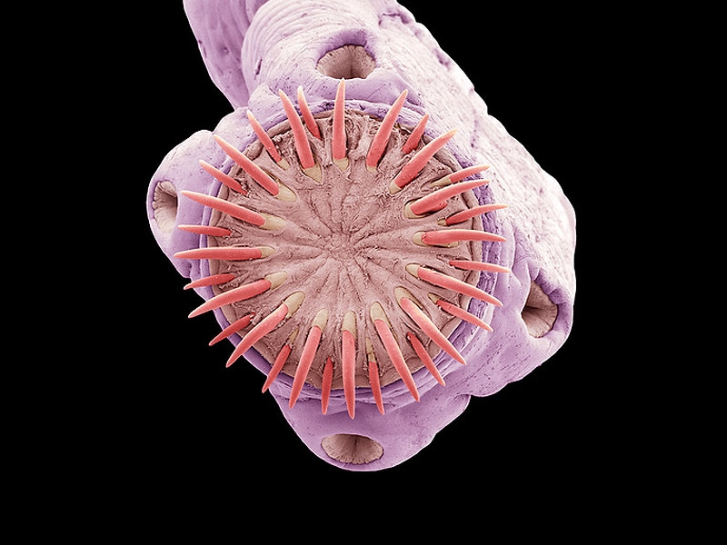 Neglected Parasitic Infections in the United States
