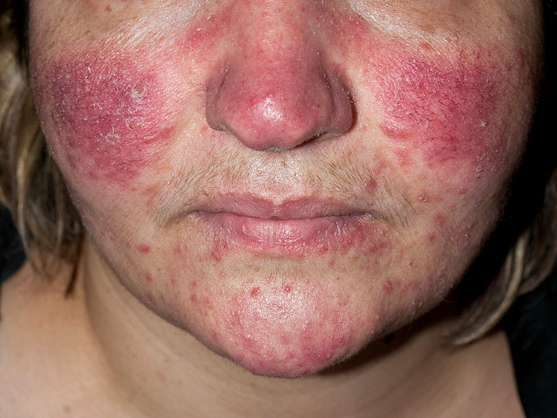 acne older adults