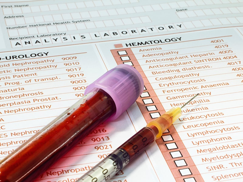 Medicare Suspends Penalty-for-PSA-Testing Proposal