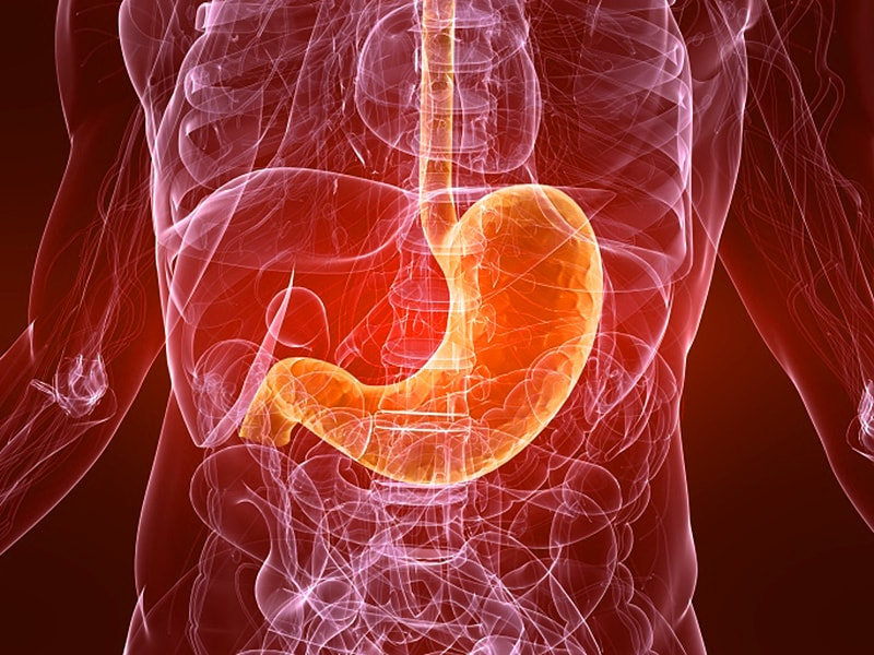No Gastric Cancer Survival Benefit in CRITICS Trial