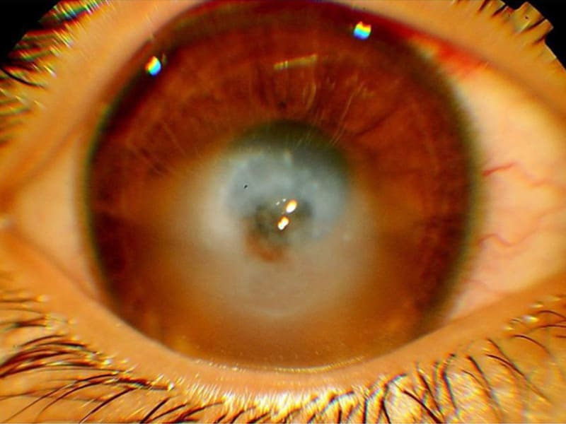 Corneal Hydrops A Cloudy and Pa...