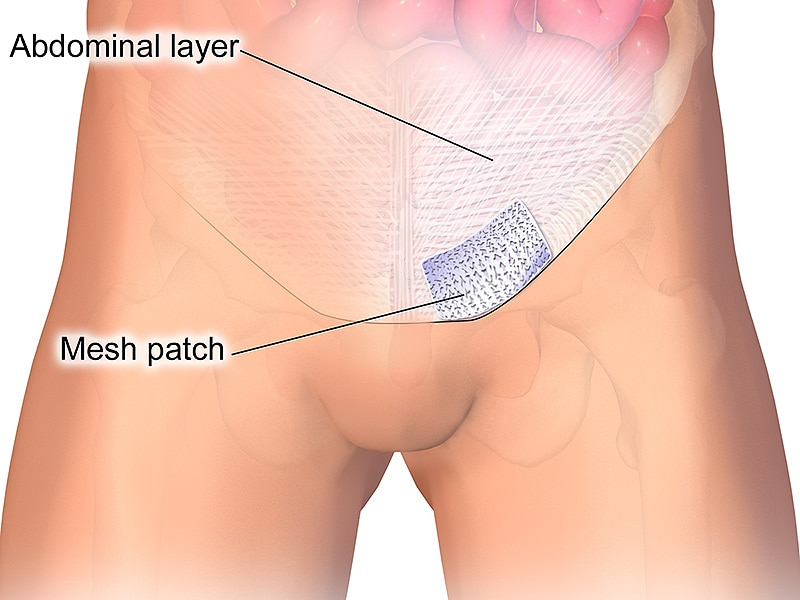 Mesh Benefits Partly Offset by Complications at 5 Years