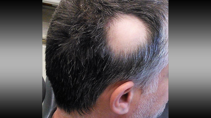 alopecia and hair loss